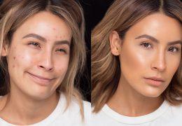 Kako do popolnega izgleda kljub mozoljasti koži
